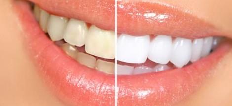 Ako si vybrať gel na bielenie zubov?
