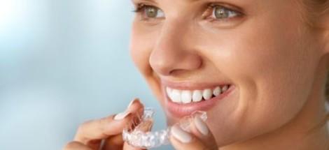 Ako vybrať vhodnú sadu na bielenie zubov?