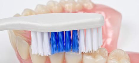 Druhy vykladacích zubných náhrad