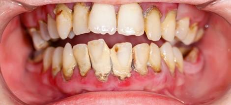 Parodontitída - ako vzniká a čo s ňou?