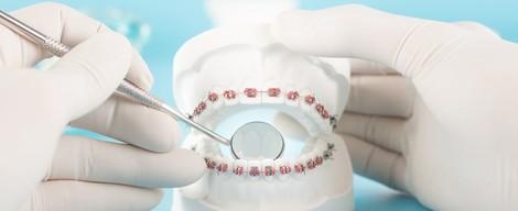 Strojčeky na zuby 1. diel – Čo všetko vás čaká