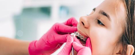 Strojčeky na zuby 2. diel – Fixné strojčeky