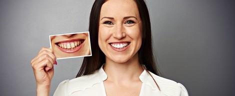 Dentálna hygiena: estetické výkony dentálnej hygieničky