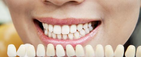 Čo všetko ovplyvňuje odtieň zubov?