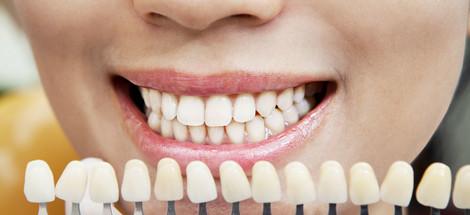 Zuby a ich odtiene