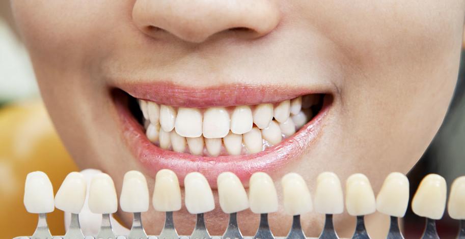 Odtiene zubov
