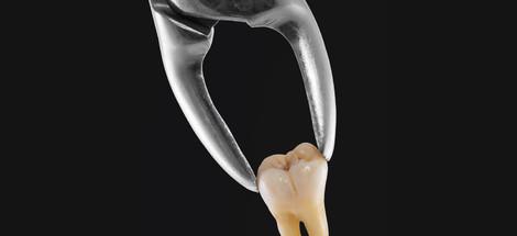 Trhaniu zubov múdrosti sa často nevyhneme