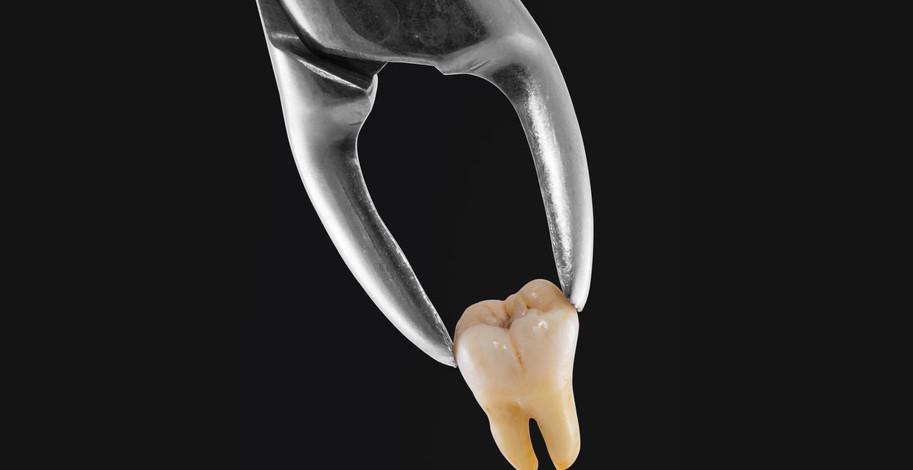 Trhanie zubov