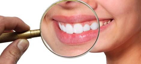 Na čo sa najčastejšie pýtate o bielení zubov