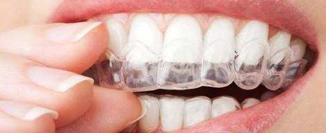 Chcem si bieliť zuby doma, aké sú možnosti?